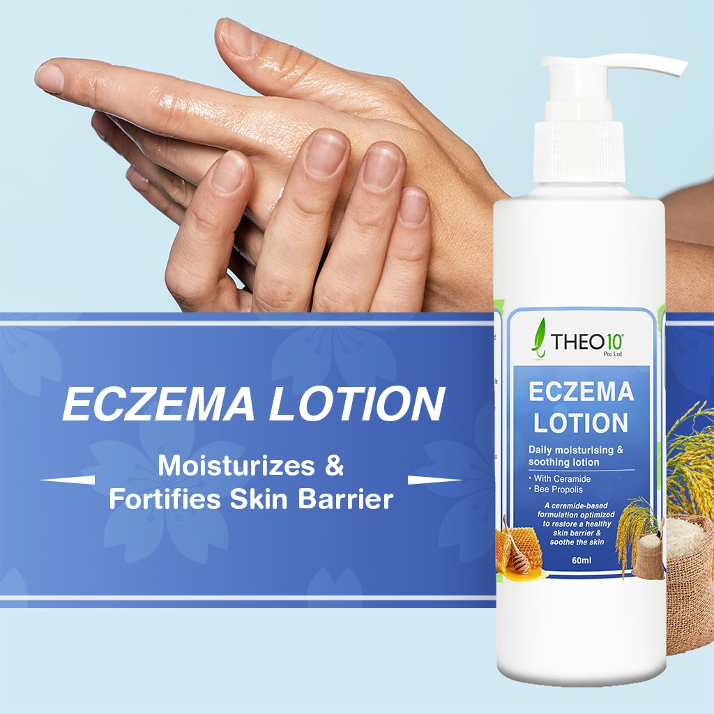 Theo10® Eczema Lotion - Natural, Anti Fungal, Anti Bacteria, Anti Viral, For Sensitive Skin, Itch, Redness