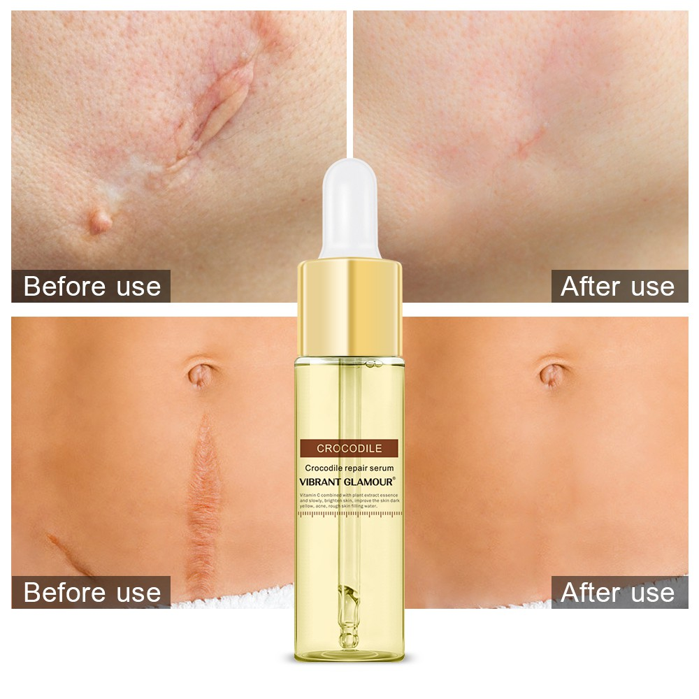 VIBRANT GLAMOUR Repair Scar Face Serum Removal Acne Scar Essence Whitening For Spots Acne Treatment Stretch Marks 15 ml