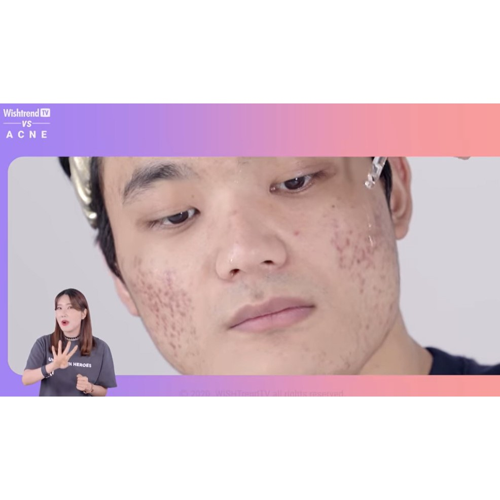 [Klairs] Acne Scar Skincare Routine, 4 products + Free gift