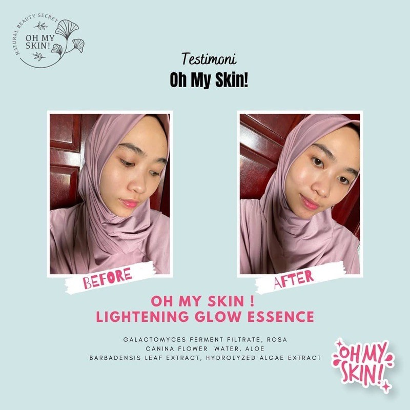 Oh My Skin! ESSENCE 4in1 produk