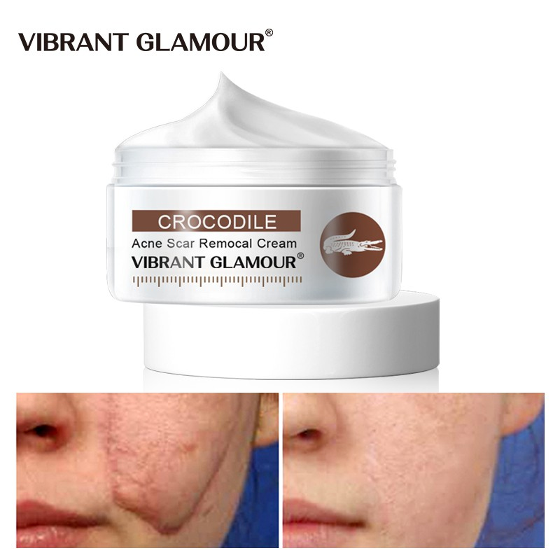 VIBRANT GLAMOUR Scar Removal Cream Remove Stretch Marks Facial Acne Treatment Whitening Repair cream Moisturizing Anti Wrinkles Scar Cream for Face & Stretchmark Cream Skin Care 30g Reduce appearance of Acne Scars and Old Scars Non-Greasy Acne Scar Cream